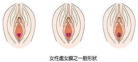 女性外生殖器官