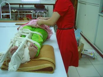 小腿骨折的固定处理方法